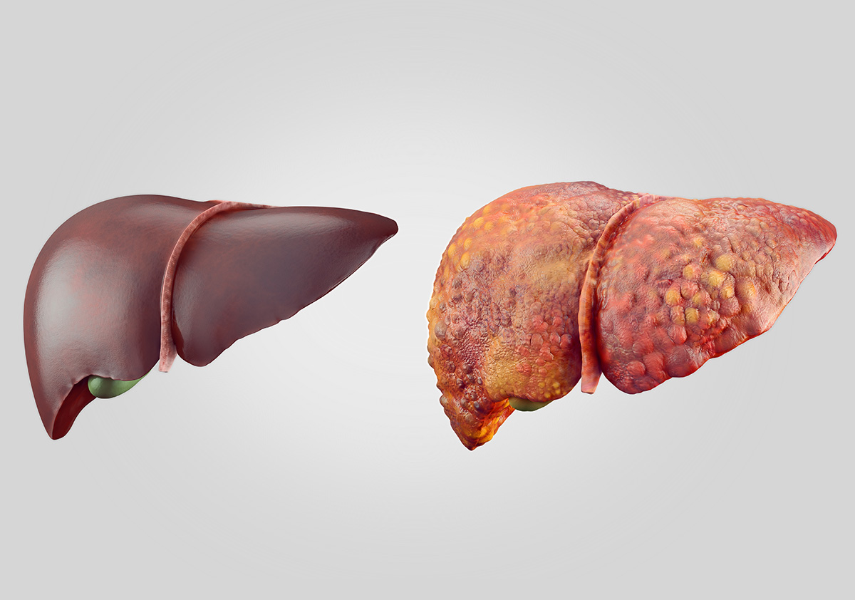 悪く 肝臓 なると 働き が の